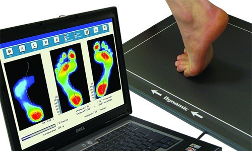 remediating leg length imbalance through custom orthotics at Van Ness Chiropractic